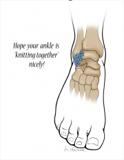 Healing Ankle