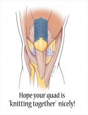 Healing Quadriceps Tendon