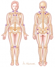 Trigger Points of  Fibromyalgia