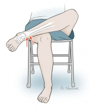 Crossed Leg Test for Ankle Sprain