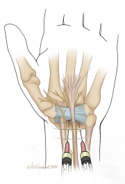 Injections for Carpal Tunnel Syndrome